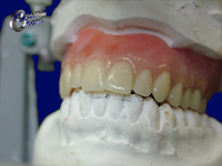 Full upper acrylic denture