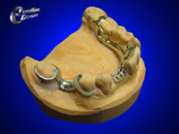 Lingual bar with dental D clasp