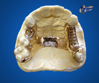 Part upper gold Mid palatal bar