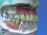 Upper swinglock and lower dentures mounted