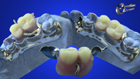 Double hinged sectional denture with P&W bolt