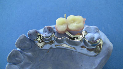 Double hinge sectional denture on model, open