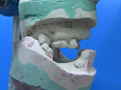 Figure 2: class 3 jaw relationship, right-hand side